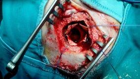 Ematoma subdurale cronico fotografia stock