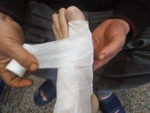 Embalaje de un pie herido con el vendaje en clínica rural Imagen de archivo