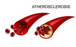 A embarcação saudável e atherosclerotic ilustração do vetor