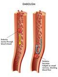 Embolisme Images stock