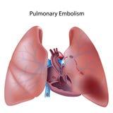 Embolisme pulmonaire Photographie stock