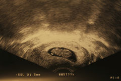 Embrione Immagine Stock