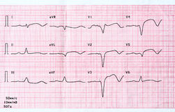 ECG with acute period of large-focal widespread anterior myocardial infarction. Emergency cardiology and intensive care. ECG with acute period of large-focal Stock Image