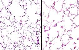 Emfyseem in de longen Royalty-vrije Stock Afbeeldingen