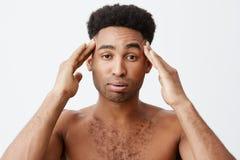 Emociones negativas Hombre que tiene dolor de cabeza después de ir de fiesta toda la noche Ciérrese para arriba de varón de piel  imagen de archivo