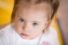 Emotions of a little girl with Down syndrome Royalty Free Stock Image