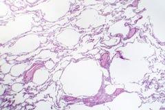 Emphysème diffus, micrographe léger image stock