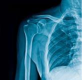Empurre a bandeira do raio X, raio X do ombro no fundo preto ilustração stock