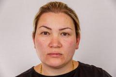 En 38-årig Caucasian kvinna med överviktig och hormonal söndring visar hennes framsida med hudproblem På en ljus isolerad backg royaltyfri fotografi