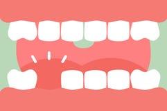 En öppen mun med stark tänder och tunga och saknad tand stock illustrationer