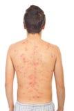 En arrière de l'homme avec la varicelle Photo stock