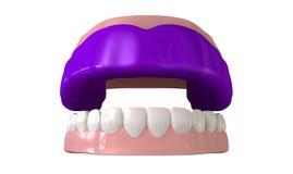 Gummivakt som är inpassad på öppna falska tänder Arkivbild