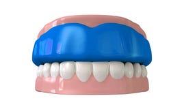 Gummivakt som är inpassad på stängda falska tänder Arkivbilder