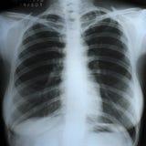 En bröstkorgröntgenstrålebildläsning Arkivfoton