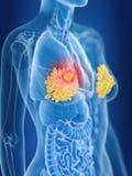 En cancer för mammary körtlar för kvinnlig royaltyfri illustrationer