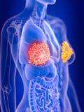 En cancer för mammary körtlar för kvinnlig vektor illustrationer