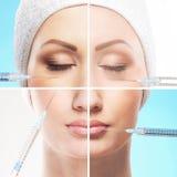 En collage av kvinnligt vänder mot delar på ett botoxtillvägagångssätt royaltyfria foton
