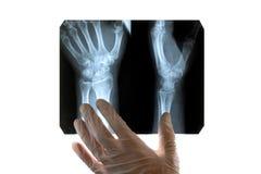 En doktor i vita handskar undersöker en röntgenstråle av en skadad hand Närbild Begrepp på ett medicinskt tema, dag av radiologen arkivfoto