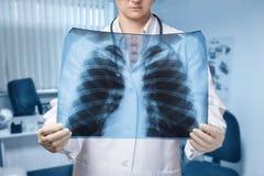 En doktor undersöker en lungabild för behandling och diagnos royaltyfria foton