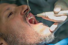 En mellersta åldrig man på den tand- kliniken tandläkarechecken hans tänder Fotografering för Bildbyråer