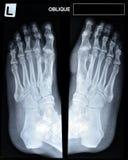 En röntgenstråle av mogen mans fot. Arkivbild