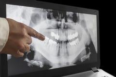 En röntgenstråle av tänder med en hand av doktorn arkivbilder