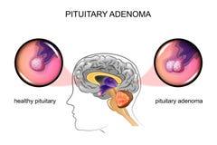 En sund hypofys och hypofysadenoma stock illustrationer