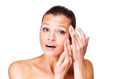 En ung kvinna har problem med huden arkivfoton
