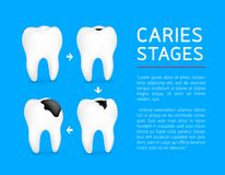 Tooth on different stages of dental caries development. Enamel caries, Dentin caries, Pulpitis and Periodontitis. Design for banner and poster. Illustration on stock illustration