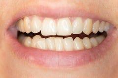 Encombrement des dents de la mâchoire inférieure d'un jeune homme caucasien photos stock
