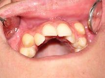 Encombrement des dents de la mâchoire supérieure image libre de droits
