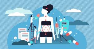 Endocrinologie vectorillustratie Uiterst klein de personenconcept van hormonenziekten royalty-vrije illustratie