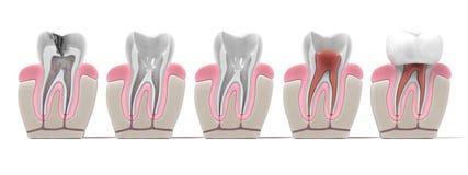 Endodontics - de procedure van het wortelkanaal stock illustratie