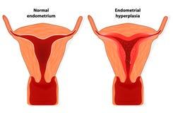Endometrial hyperplasia royaltyfri illustrationer