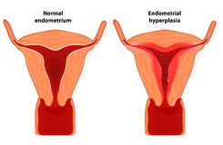 Endometrial hyperplasia. Is an overgrowth of tissue in the endometrium uterus.  The uterine lining becomes too thick which results in abnormal bleeding Stock Photo