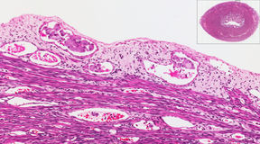 Endometrial kanker in schepen Royalty-vrije Stock Foto