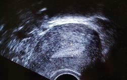 Endometrial lager för Ecography ultraljud Arkivbild