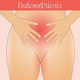 Endometriosi Fotografie Stock