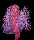 Endovascular动脉瘤修理, CT图象 免版税图库摄影