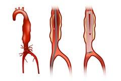 Endovascular aneurysm repair. Or endovascular aortic repair EVAR royalty free illustration