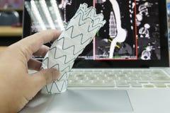 Endovascular stent graft Stock Image