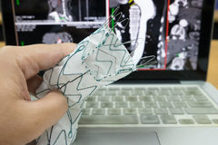 Endovascular stent graft. The endovascular stent graft for surgery Royalty Free Stock Photo