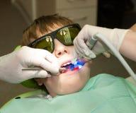 Endurecimiento del relleno dental imagenes de archivo