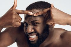 Enduring black man squeezes pimple on face. Acne. Male hygiene. Isolated on white background. Studio portrait. Face care royalty free stock photo