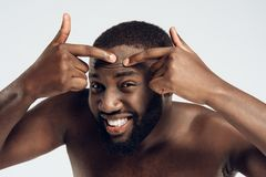 Enduring black man squeezes pimple on face. Acne. Male hygiene. Isolated on white background. Studio portrait. Face care stock photos