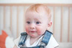 Enfant avec la dermatite atopique Image libre de droits