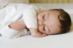 Enfant avec la varicelle image stock