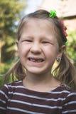Enfant avec un dispositif orthodontique dentaire et sans une dent photographie stock libre de droits