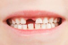 Enfant avec un espace de dent Photos stock
