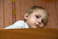 Enfant malade Image libre de droits